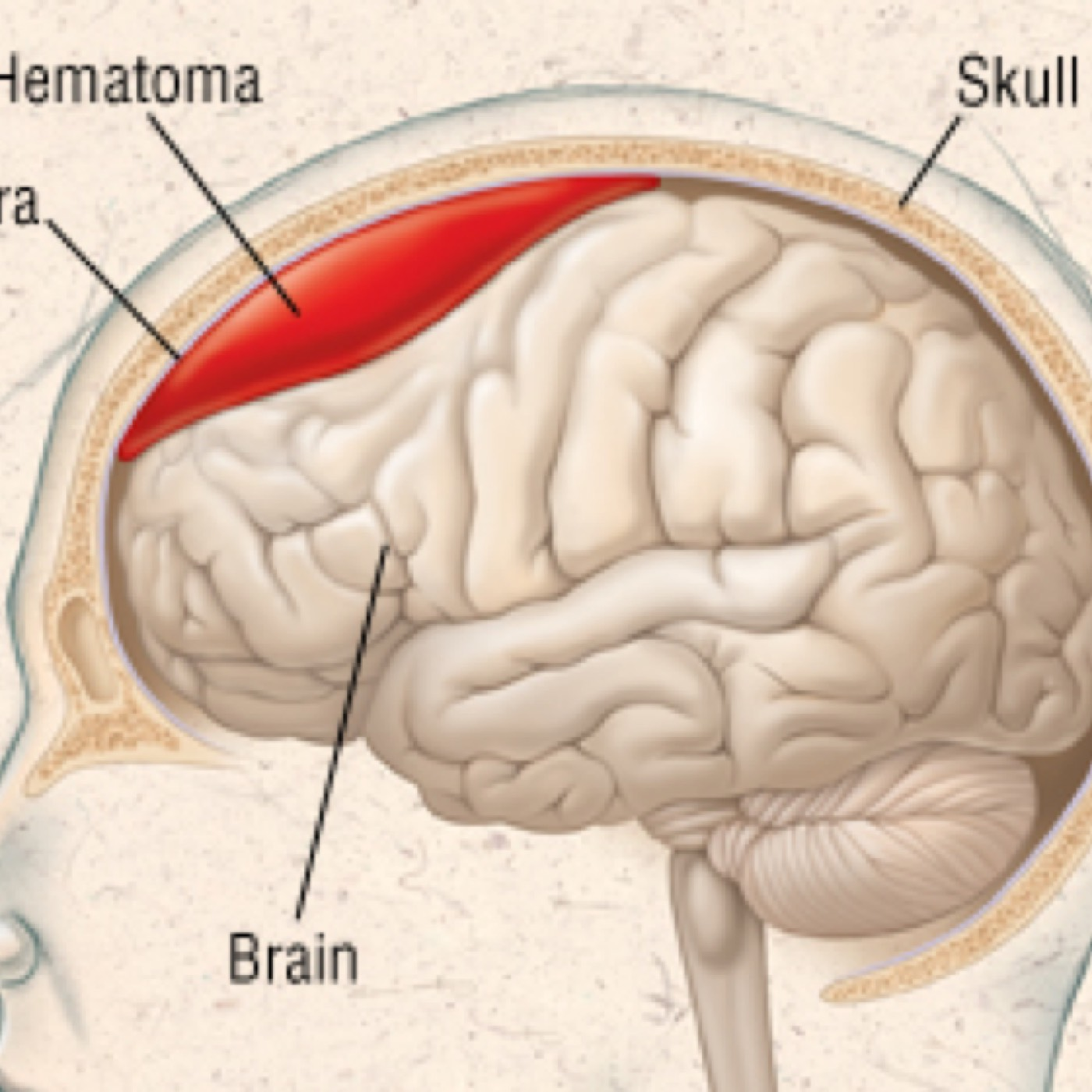 Podcast #166: Subdural Hematoma – The Emergency Medical Minute