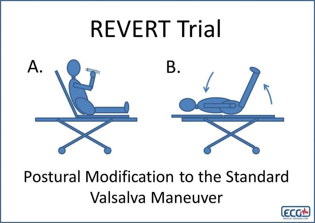 Modified Valsalva Maneuver for SVT diagram