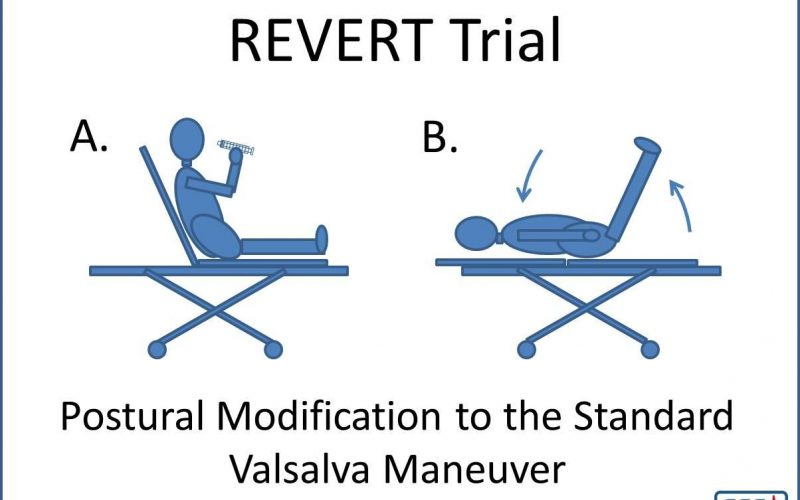 Modified Valsalva Maneuver for SVT diagram